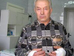 Пенсионер из-под Пинска душил волка почти час